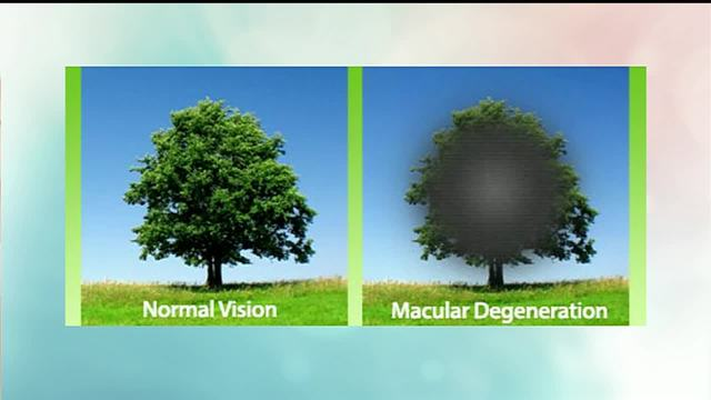 Macular Degeneration Eye Disease
