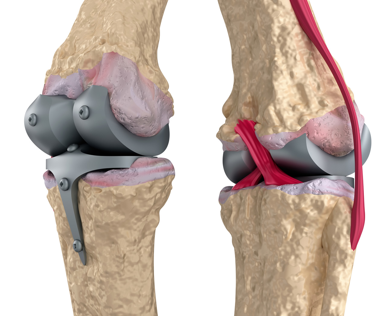 Knee Replacements