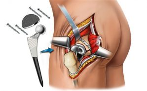 Know About Partial and Total Hip Replacement