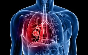 Key facts to Consider before Getting Effective Treatment for Lungs…