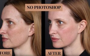 best cosmetic treatment