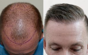SAY GOODBYE TO BALDNESS WITH HAIR TRANSPLANT
