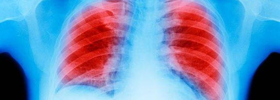 Managing Finances When You Have Lung Cancer